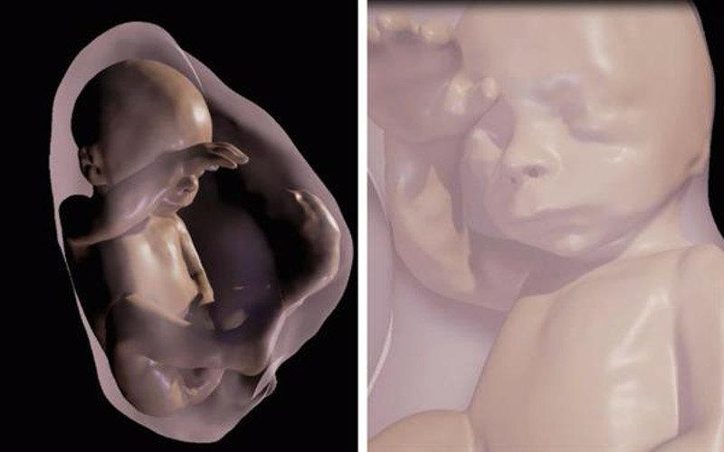 foetus realite virtuelle